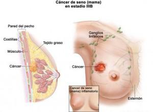 Tratamiento oportuno del cáncer  lo hacve curable